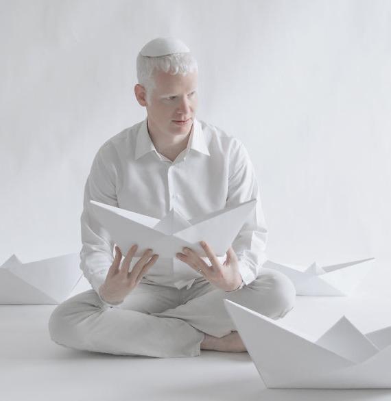 Porcelain Beauty: So schön sind Albinos