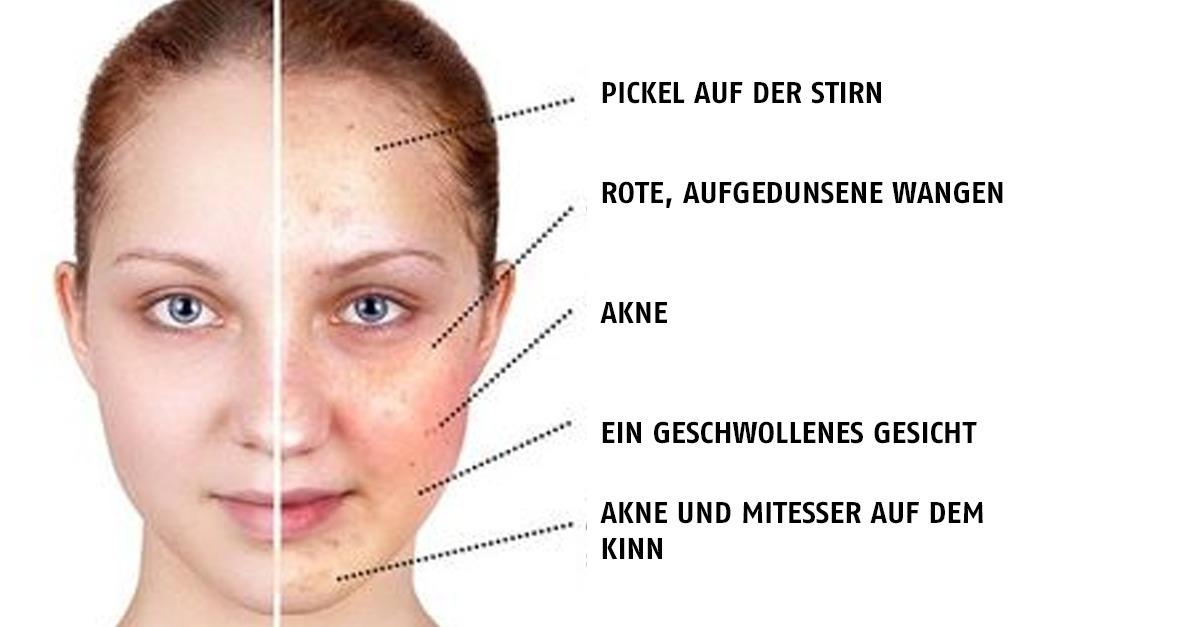 Wassereinlagerung Gesicht