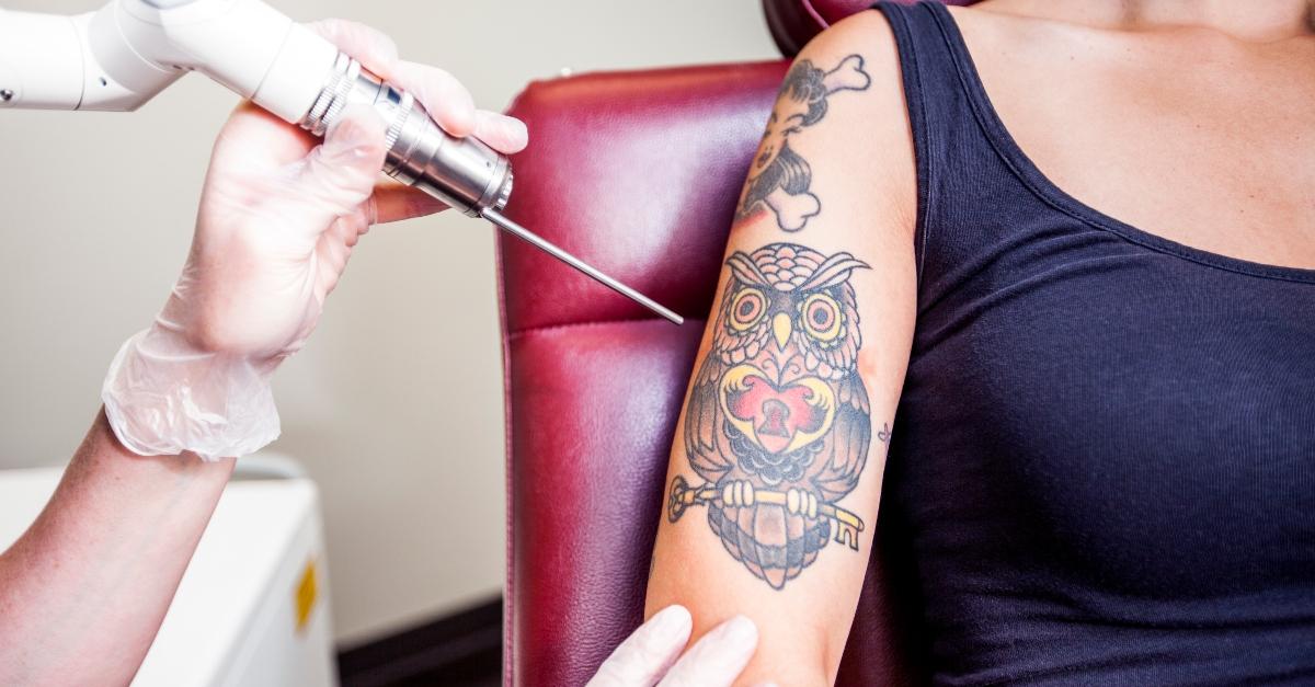 Tattoo-Entfernung per Laser – Schonend, effektiv und bewährt