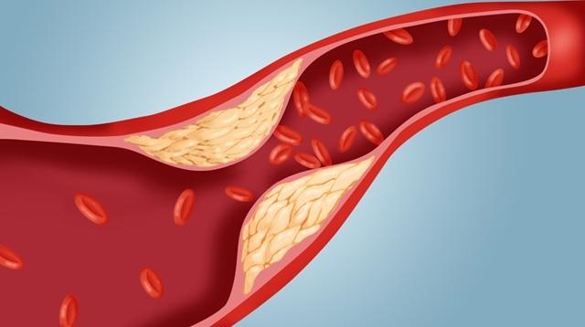 Cholesterin: Was das ist und mit welchen Lebensmitteln du deinen Cholesterinspiegel senkst