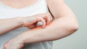 Schuppenflechte oder Psoriasis
