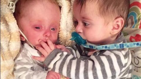 Süße Zwillinge: Doch einem Kind fehlt ein lebenswichtiges Organ...