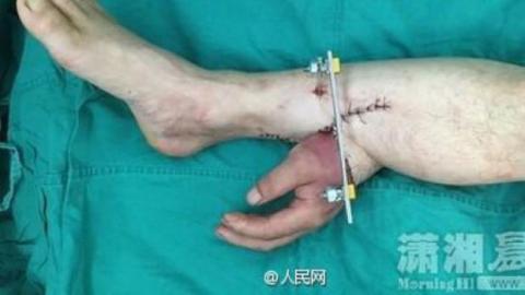 Ärzte transplantieren Hand eines Patienten über seinen Fußknöchel, um sie am Leben zu erhalten.