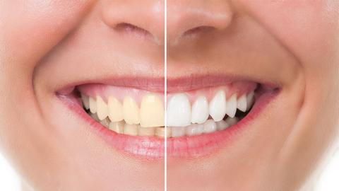 Vergesst Bleaching: Mit diesem natürlichen Mittel werden eure Zähne wieder strahlend weiß!