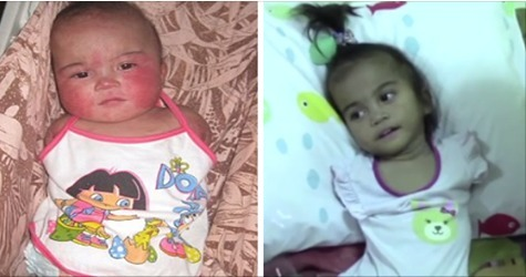 Dieses kleine Mädchen kommt ohne Arme und Beine zur Welt...Doch dann nimmt ihr Schicksal eine unerwartete Wende!