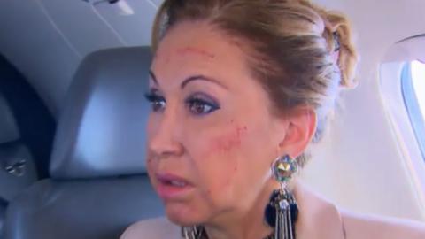 Blutverschmiertes Gesicht: Sorge um Carmen Geiss!