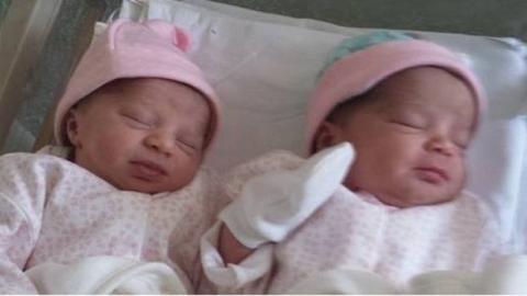 Diese Zwillinge sind mit unterschiedlicher Hautfarbe zur Welt gekommen