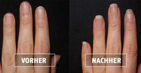 Ihr Fingernägel sind durch dieses bestimmte Nagelbad wie verwandelt!