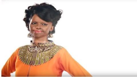 Indien: Ihr durch einen Säureangriff entstelltes Gesicht wird Teil einer Modekampagne