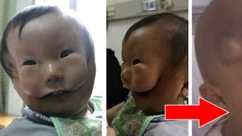 Dieses Kind leidet an Makrostomie, einer Krankheit, die sein Gesicht spaltet!
