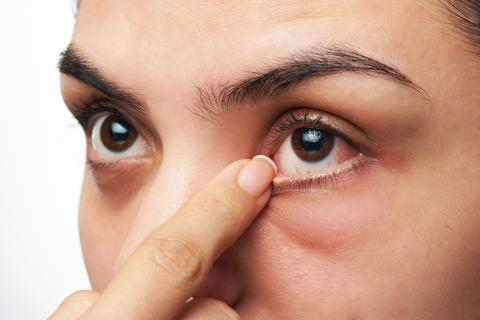 Wenn deine Augen diese Symptome zeigen, bist du womöglich schwer krank