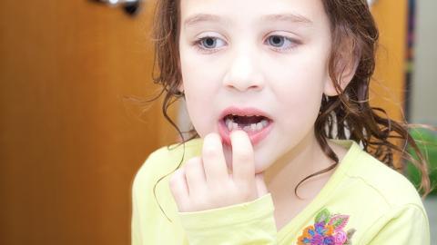Wackelzähne können in der Nacht zur Gefahr werden: Dieser 9-Jährigen wird einer zum Verhängnis