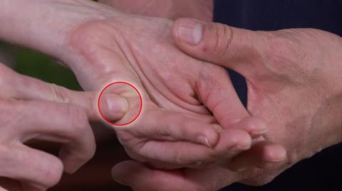 Akkupressur: Dieser Punkt an deiner Hand hilft bei Bluthochdruck