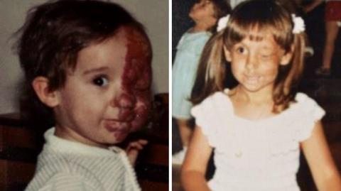Seit der Kindheit wegen eines Tumors im Gesicht entstellt, nimmt sie sich ihre Wiedergutmachung am Leben.