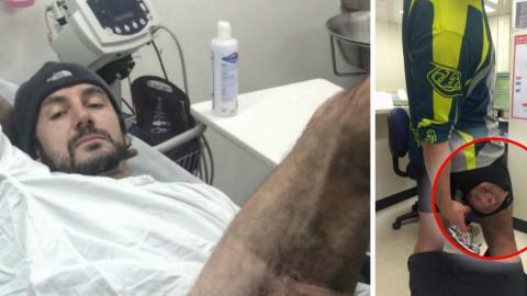 Gareth Clear: Infolge eines Fahrradunfalls überhitzt das iPhone in seiner Hose und bleibt an seiner Haut kleben