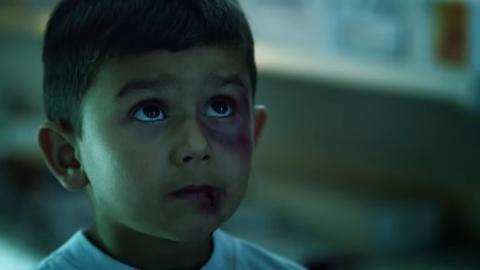 Dieser kleine Junge wurde Opfer von Gewalt. Wonach er danach fragt ist erschütternd