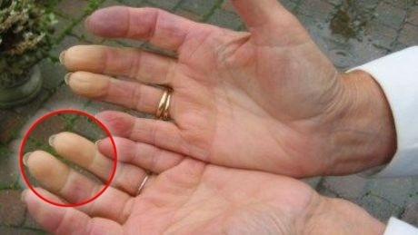Raynaud-Syndrom: Die Leichenfinger- oder Weißfingerkrankheit