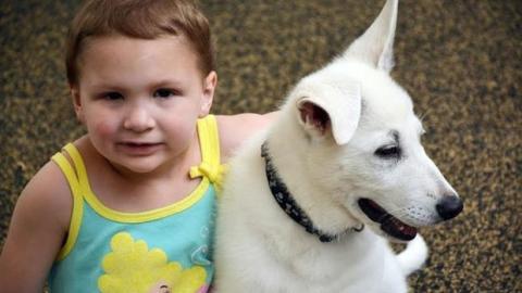 Dieses kleine Mädchen, dem beide Beine amputiert wurden, kann dank ihres Hundes wieder lächeln.