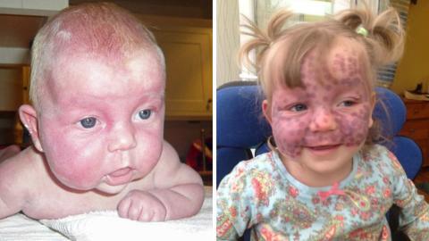 Fünfjähriges Mädchen mit seltener Krankheit bewegt das Netz