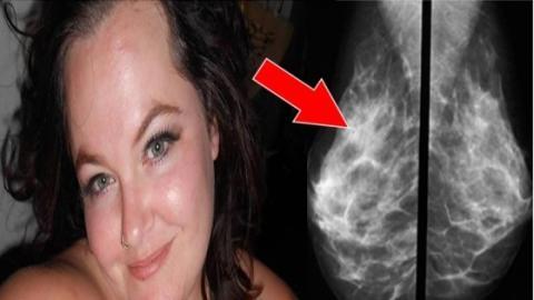 Diese Frau erwartet ein Kind... Dann kündigen ihr die Ärzte eine schreckliche Hiobsbotschaft an!