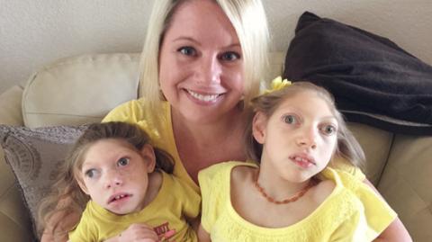 Mikrozephalie: Bei Familie Grace schlägt das Schicksal gleich zweimal zu