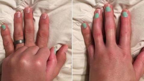 Die wundervolle Geste eines Mannes für seine Frau, der ein Finger amputiert wurde