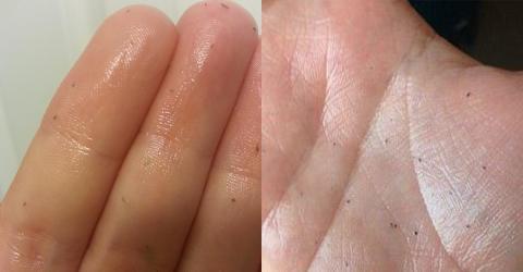 Skin Gritting: Der neue Beauty-Trend gegen Mitesser