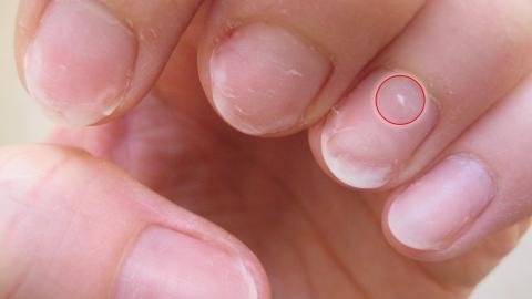 Sie hat häufig diese kleinen weißen Stellen auf dem Nagel! Der Arzt klärt sie über die Ursache auf!