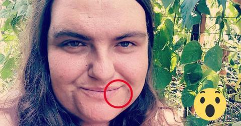 Sie hat einen starken Bartwuchs. Jetzt trifft sie eine radikale Entscheidung!