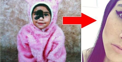 Mariana Mendes: Diese junge Frau mit einem Muttermal im Gesicht macht daraus ihr Markenzeichen