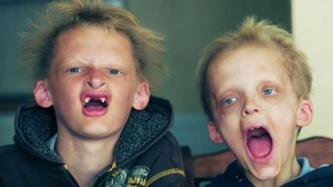 Die gruselige Geschichte der Vampir-Kinder