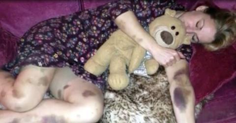 Nach Partynacht: Ihr Körper ist von Blutergüssen übersät und sie kann es sich nicht erklären
