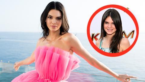 Akne-Probleme: Kendall Jenner spricht über ihren harten Kampf gegen die Pickel