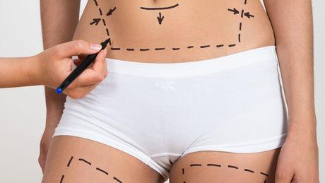 Fettabsaugung: Kosten, vorher nacher, Risiken, Schmerzen