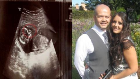 schwanger werden nach abtreibung