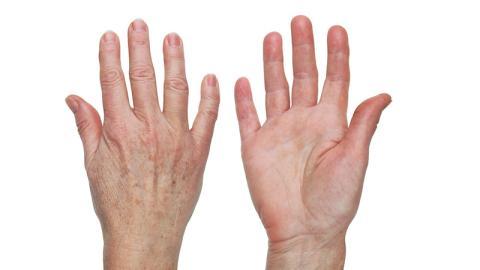 Mit zwei natürlichen Zutaten wirst du Altersflecken ruckzuck los!