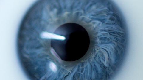 Mouches volantes: Die Augenkrankheit, die für viel Leid sorgt