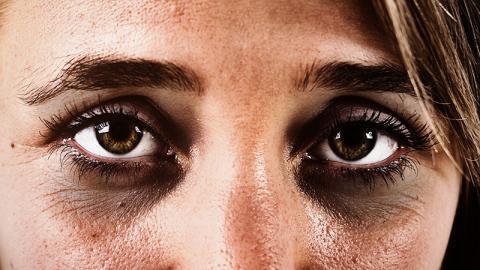 Sie schmiert sich etwas, das eigentlich nicht ins Gesicht gehört, unter die Augen und wird ihre Augenringe los