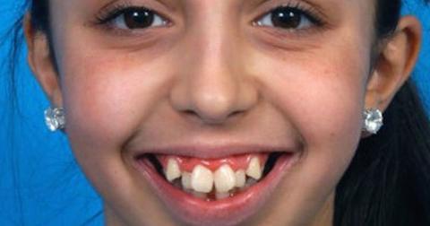 Zahnfehlstellung: Nach mehreren Operationen ist sie nicht mehr wiederzuerkennen