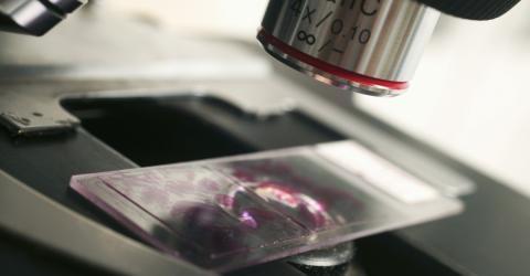 Krebsforschung: Ein bestimmtes Lebensmittel regt das Wachstum von Krebszellen an