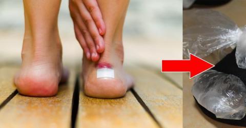 Neue Sandalen? Mit diesen Tipps musst du dir keine Sorgen mehr um Schrammen und Blasen machen!