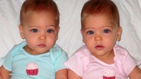 8 Jahre später: So sehen die schönsten Zwillinge der Welt heute aus