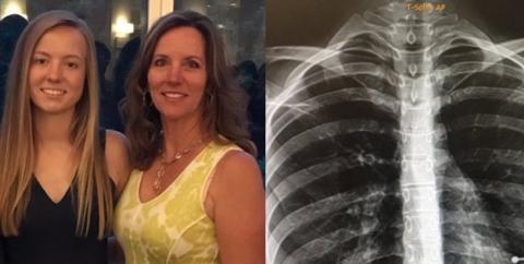 Sie hat ein Geheimnis vor ihren Eltern, doch ein Röntgenbild deckt alles auf
