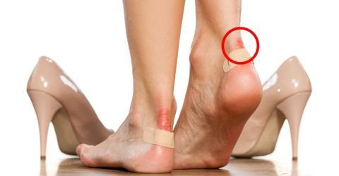 Tipps um Blasen an den Füßen zu vermeiden!