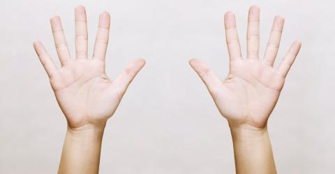 Nur etwa 3 % aller Menschen haben dieses Zeichen auf ihrer Hand: Das streckt dahinter!