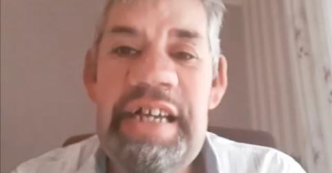 Wie im Alptraum: Bauer Uwe verliert alle Zähne!
