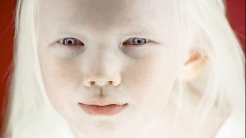 Sie kommt mit einem Gendefekt zur Welt, doch das kann sie nicht aufhalten