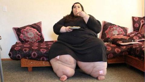 Nach einer OP nimmt diese junge Frau 180 Kilo ab. Sie ist nicht mehr wieder zu erkennen!