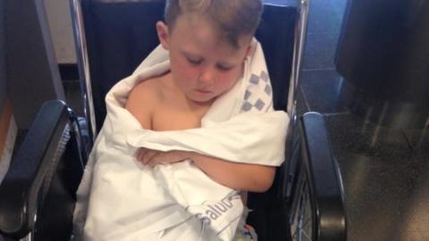 Mutter warnt Eltern vor Badehosen, nachdem sich ihr Sohn schwer verletzt