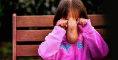 Mädchen leidet sehr unter ihrem Gesicht. Doch heute ist sie wie verwandelt!